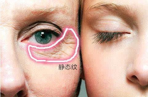 浏阳化妆培训学校_我们该如何去眼纹?
